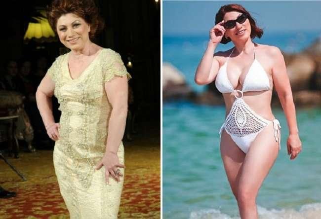 Сделала и не жалею: российские знаменитости, которые гордятся увеличенной грудью