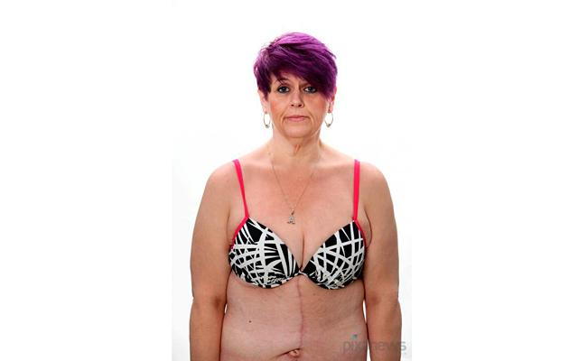 Врачи удалили женщине 4,5 кг кожи